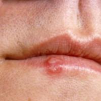 Úlceras Frias